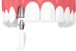 Model showing each component of a dental implant.