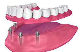 Animation of implant supported denture