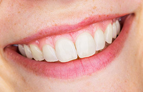 Closeup of health teeth and gums
