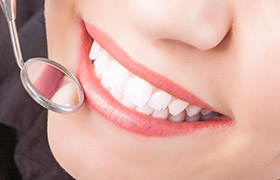Closeup of healthy smile during dental exam